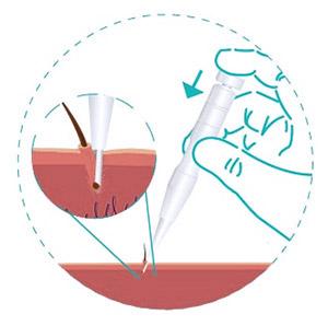 traşsız saç ekimi (dhi)