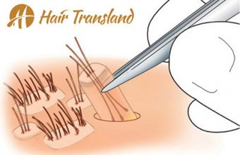 perkutan saç ekimi