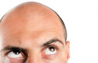 saç ekimi zararlımıdır