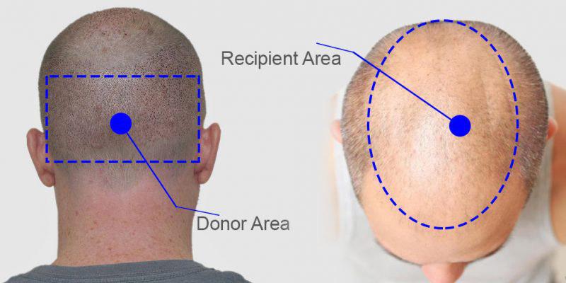 zona donante