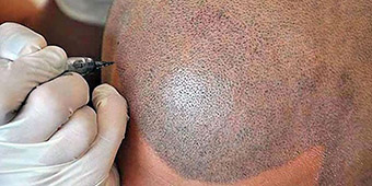 saç similasyonu
