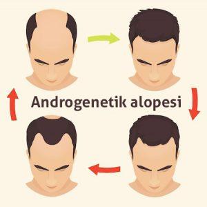 andro genetik alopesi