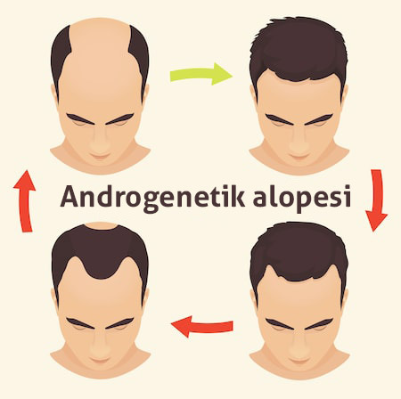 alopecia-stages