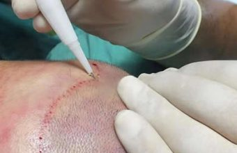 hair transplantation with dhi method