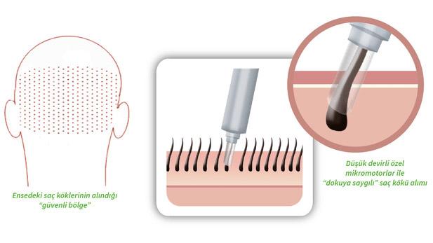 perkutan-hair-transplant