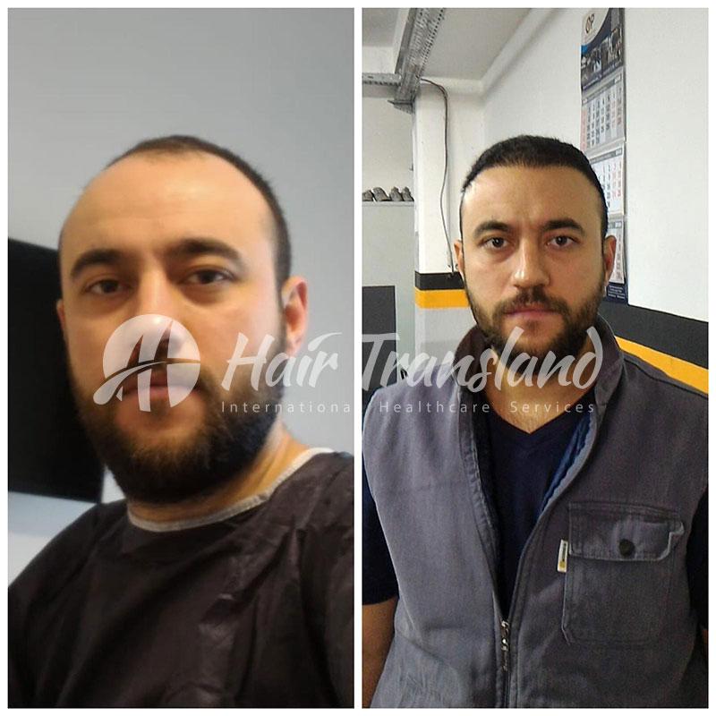 saç ekim istanbul